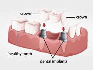 dental bridge virginia beach