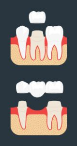 dental crowns virginia beach
