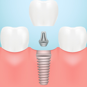 dental implants virginia beach