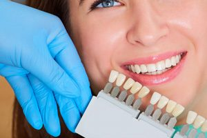 discolored teeth treatment
