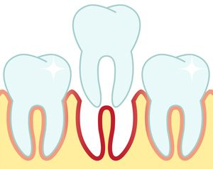 tooth extractions virginia beach