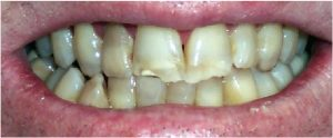 before crooked teeth