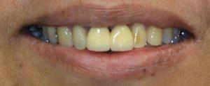 before teeth discoloring