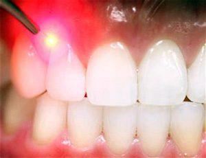 soft tissue laser dental