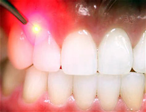 soft tissue laser dental